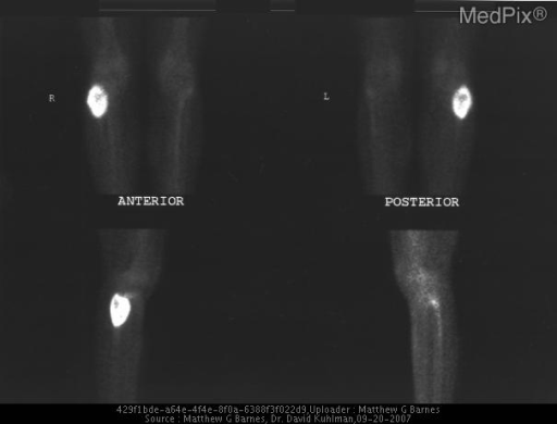99 Tc Scan demonstrates that expansile lytic lesion within the head of the proximal right  fibula demonstrates increased radiotracer accumulation, with suggestion of a mild photopenic area centrally.  No additional abnormal radiotracer uptake throughout the remainder of the right or left knee region.  Normal soft tissue uptake.