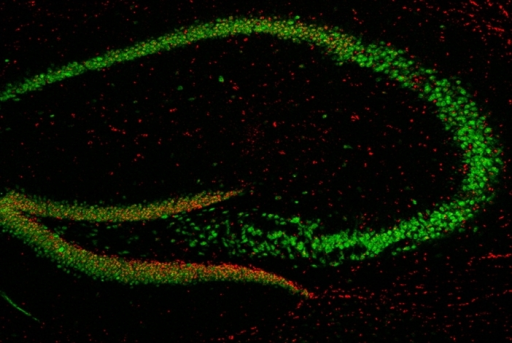NRSE dsRNA (red) makes NRSF/REST (green) an activator in differentiating neurons.Gage/Elsevier