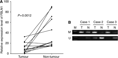Fibulin 1 is downregulated and hypermethylated in primary gastric carcinoma tissues. (A) The expression of FBLN1 in gastric carcinoma and adjacent non-tumour tissues was determined by quantitative real-time RT–PCR as in Figure 1A. (B) The methylation status of the FBLN1 promoter in primary gastric carcinoma and adjacent non-tumour tissues was determined by MSP as in Figure 2B. Representative results are shown.