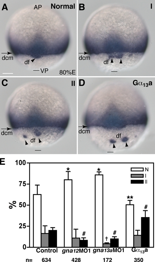 Gα12/13 signaling modulates the phenotype ofhabvu44 mutant embryos.(A–C) Different phenotypic classes of progeny ofhabvu44/+ parents revealedby ntl staining: normal pattern (A), type I (B), andtype II (C). See text for details. (D) A representative image showingexacerbation of epibolic defects of habvu44mutant embryos overexpressing Gα13a (20 pg; seetext for details). A dorsal view is shown. AP, animal pole; VP, vegetalpole. Bars, 100 µm. (E) Effects of alteredGα12/13 signaling on distribution of thephenotypic classes of progeny fromhabvu44/+ parents. The data weregenerated from at least three separate experiments, with the totalnumber of embryos indicated below the graph. Error bars represent mean± SEM. *, P < 0.001; **, P< 0.05; †, P < 0.01; #, P <0.001 versus control.