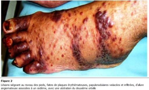 Isolation biologique skin
