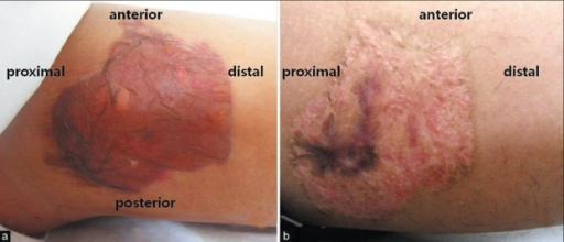 Case 1. Tourniquet-associated chemical burn developed on medial aspect of thigh: (a) immediate postoperative; (b) 1year and 9 months postoperative