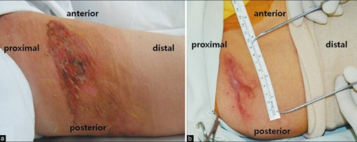 Case 2. Tourniquet-associated chemical burn developed on medial aspect of thigh: (a) 1 week postoperative; (b) 1 year and 4 months postoperative (just prior to scar excision)
