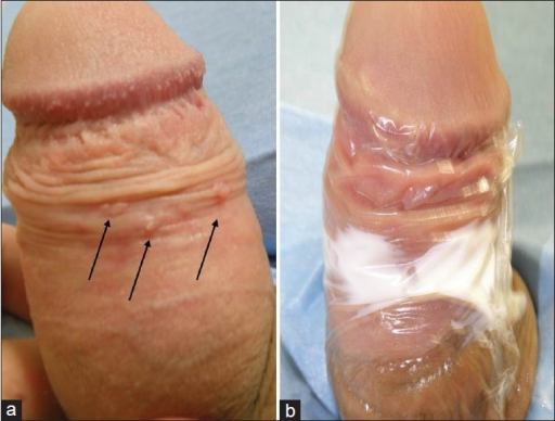 herpes on penile shaft pictures #11