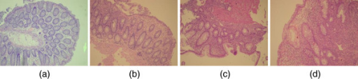 Acquired images representing IBD biopsies graded manually as (a) normal, (b) grade I, (c) grade II, and (d) grade III.
