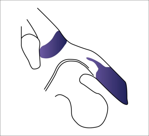 Preoperative illustration showing the bruised area (colored blue) and the spared areas.