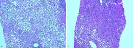 a Microscopic view of liver tissue (hematoxylin-eosin, ×100). Liver tissue with hepatic fat infiltration including >66% of hepatocytes, ballooning cells and lobular inflammation (NAFLD activity score 5) consistent with NASH. Pericellular and periportal fibrosis (fibrosis score 2). b Microscopic view of liver tissue (hematoxylin-eosin, ×100). Liver tissue with hepatic fat infiltration including 40–50% of hepatocytes, sparse lobular inflammation and no ballooning cells (NAFLD activity score 2) consistent with simple steatosis. Pericellular and periportal fibrosis (fibrosis score 2).