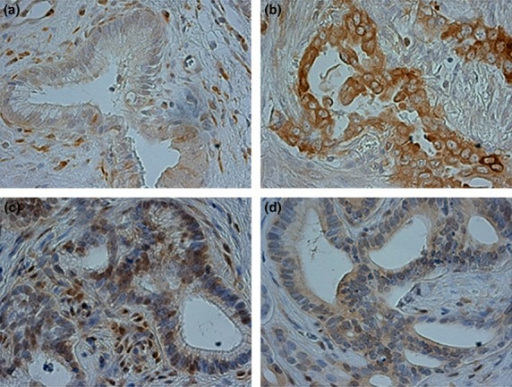 Immunohistochemical staining of stathmin1 (STMN1) and p27 in primary extrahepatic cholangiocarcinoma (EHCC) samples. (a) Low STMN1 expression in a primary EHCC specimen (original magnification, ×400). (b) High STMN1 expression in a primary EHCC specimen (original magnification, ×400). (c) High nuclear p27 expression and low cytoplasmic p27 expression in a primary EHCC specimen (original magnification, ×400). (d) Low nuclear p27 expression and high cytoplasmic p27 expression in a primary EHCC specimen (original magnification, ×400). Figures a, c and b, d show images from the same cases.