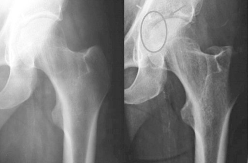 Initial (left) and 2 weeks later (right) X-rays: the circle around the radiological image indicates the crescentic radiolucent zone on the femoral head that led to continue with further examination.