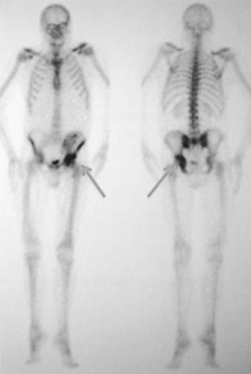 Bone scintigraphy: increased uptake at the coxo-femoral joint (inflammatory process aspect) that ruled out the hypothesis of an aseptic bone necrosis.
