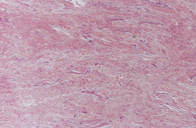 Variable numbers of fibroblasts and numerous thin-walled vessels.