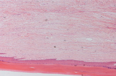 The overlying epidermis is hyperkeratotic and acanthotic.