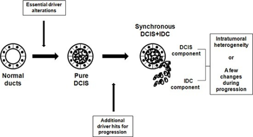 Schematic representation of suggested genomic status of pure DCIS, synchronous DCIS and IDCDevelopment of pure DCIS requires essential genetic driver alterations, to which more genetic alterations are added for progression to synchronous DCIS-IDC. No significant genomic difference between IDC and synchronous DCIS suggest that they are genetically at the same stage with just intratumoral heterogeneity or minimal genetic changes during progression to IDC.