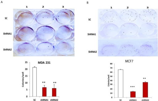 Silencing CLDN1 inhibits breast cancer cell survival. (A,B) Cell survival in MDA-MB-231 (A) and MCF7 (B) cells transduced with different CLDN1 lentiviral shRNAs and control vectors were examined by cell colony formation assays. Cell colonies were counted after culture (two weeks) in six-well plates and Crystal Violet staining. The number of colonies in CLDN1 lentiviral shRNA transduced cells was compared to that in control cells. Data were analyzed and presented from three independent experiments (** p < 0.01; *** p < 0.001).