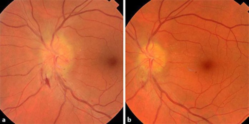 a Fundus photograph. Posterior pole of the left eye demonstrates marked swelling of the optic disc with peripapillary hemorrhage. b Fundus photograph. Posterior pole of the left eye 2 weeks after initiation of antimycobacterial therapy shows marked resolution of the optic disc swelling.