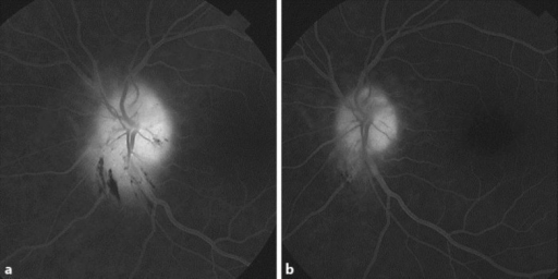a Intravenous fluorescein angiography (6 min 21 s after dye injection). The left optic disc shows profuse leakage well at the venous phase transit. b Intravenous fluorescein angiography (8 min after dye injection). The left disc shows minimal leakage at the venous phase transit 2 weeks after initiation of therapy.