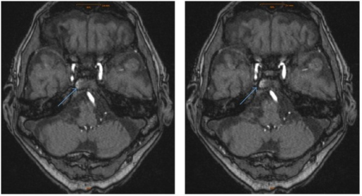 Mri Axial Images With Contrast Enhancement Of The Right Open I