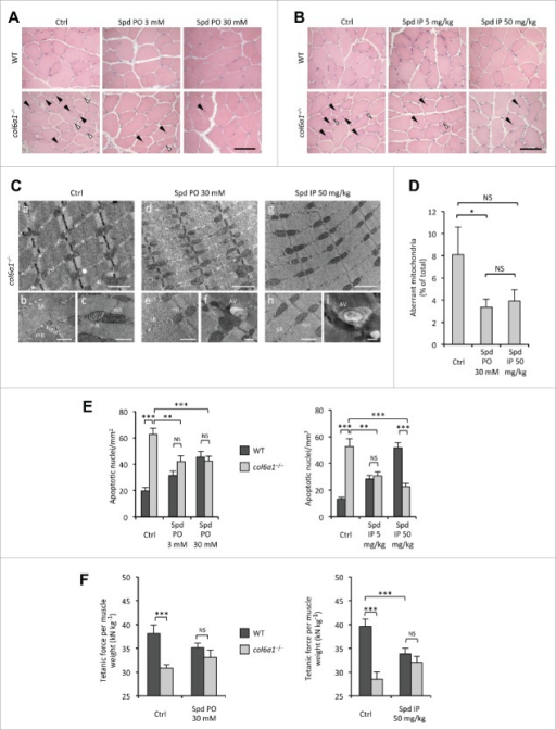 Spermidine treatment ameliorates the myopathic phenotype of col6a1−/− mice. (A, B) Haematoxylin-eosin staining of cross sections of tibialis anterior muscles from untreated (Ctrl) and per os (A) or i.p. (B) spermidine-treated wild-type and col6a1−/− mice. In col6a1−/− mice, centrally nucleated fibers (black arrowheads) and atrophic fibers (white arrowheads) appear reduced after spermidine treatment. Scale bar: 50 μm. (C) Representative electron micrographs of diaphragm thin sections from untreated (a to c) and per os (d to f) or i.p. (g to i) spermidine-treated col6a1−/− mice. Low-power views (upper panels) reveal improvement of muscle ultrastructure following spermidine treatment. High-power magnifications (lower panels) show dilated sarcoplasmic reticulum (SR) and swollen mitochondria (mit) in untreated col6a1−/− mice (b,c), and the presence of autophagic vacuoles (AV) in spermidine-treated col6a1−/− mice (f,i) together with a marked amelioration of organelle morphology (e,h). Scale bar: 1 μm (upper panels) or 500 nm (lower panels). (D) Percentage of morphologically altered mitochondria in the diaphragm of untreated (Ctrl) and spermidine-treated (PO 30, per os 30 mM; IP 50, i.p. 50 mg/kg) col6a1−/− mice (n = 3 or 4; P< 0.05; NS, not significant.) (E) Quantification of apoptosis by TUNEL assay in diaphragm muscles of untreated (Ctrl) and per os (left panel) or i.p. (right panel) spermidine-treated wild-type and col6a1−/− mice (n = 3, each group; **, P < 0.01; ***, P < 0.001). (F) In vivo tetanic force measurements in gastrocnemius muscle of untreated (Ctrl) and per os or i.p. spermidine-treated wild-type and col6a1−/− mice. The histograms report the normalized strength at a stimulation frequency of 100 Hz (n = 5, each group; ***, P<0.001; NS, not significant). Ctrl, untreated control condition; Spd IP, spermidine i.p.; Spd PO, spermidine per os. WT, wild-type.