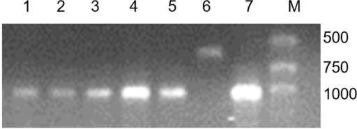 PCR results of 4 specific primers: O11B3 and O11B5, ω-sec-P1 and ω-sec-P2.Lane 1 = RT1249; lane 2 = RT1163-4; lane 3 = RT1217-11; lane 4 = RS1200-3; lane 5 = CN11; lane 6 = MY11; lane 7 = Aigan rye; lane M = marker.