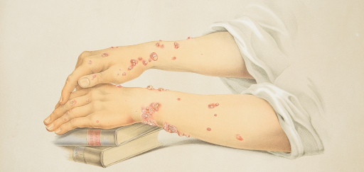 <p>Image of a lithograph from Hebra's Atlas, pt. 6, pl. 6, showing a young woman's hands and forearms, her right on top of her left, resting over a couple of books, displaying herpes iris lesions.</p>