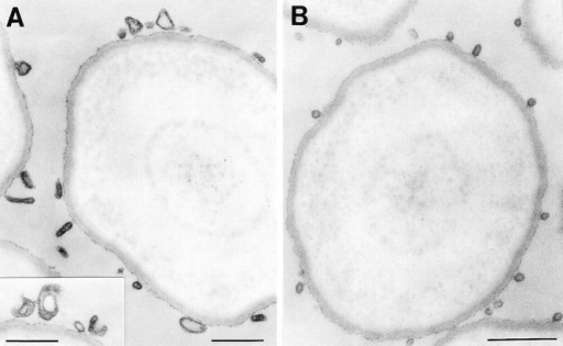 Electron microscopy of glycerol gradient  fractions. The 12,000 g supernatant prepared from PC12  cells was subjected to glycerol gradient centrifugation,  and the pools of fractions 1  and 2 (A) and fractions 5–9  (B) were subjected to immunoisolation using anti-synaptophysin beads followed by  fixation and processing for  electron microscopy. Note  the heterogeneous membrane structures in A and the  homogenous population of  50-nm vesicles in B. No  membranes were adsorbed  to the beads if the anti-synaptophysin antibody was  omitted (not shown). Bars,  300 nm.