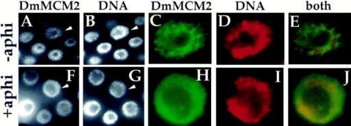 DmMCM2 is retained on chromosomes  when DNA synthesis is  inhibited. Larval salivary  glands from control larvae  (−aphi) and larvae on aphidicolin-containing diet (+aphi)  were dissected, fixed, and  stained for DmMCM2 and  DNA as indicated. The nucleus indicated with an arrowhead in A and B is magnified and shown in C–E.  The nucleus indicated with  an arrowhead in F and G is  magnified and shown in H–J. In F and H, colocalization of DmMCM2 and DNA results in uniform DmMCM2 stain in the nonnucleolar  region of nuclei when viewed in cross-section (similar to Fig. 1, 4 and schematized in Fig. 4 as chromosomal). In contrast, in most nuclei  in A and in the nucleus in C, DmMCM2 did not colocalize with DNA and appears netlike (as in Fig. 1, 5 and schematized in Fig. 4 as nucleoplasmic).