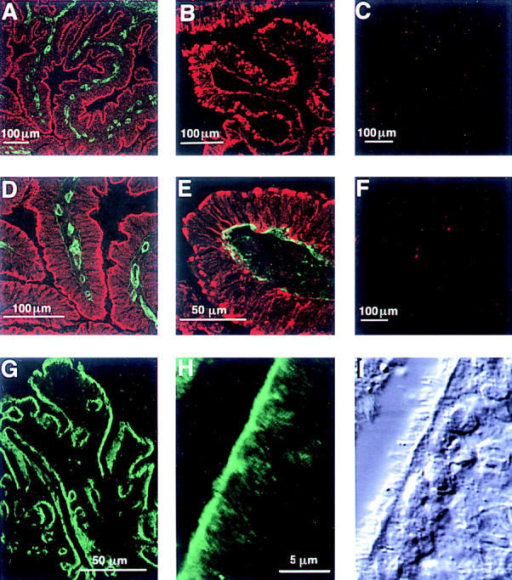 Laminin γ3 is expressed on the apical surface of  the ciliated epithelium of the bovine and rat fallopian tube. Confocal laser microscope images of  freshly frozen tissue sections of  fallopian tube; in each image, five  optical sections were superimposed. The laminin γ3-reactive  antiserum R16 (A and D, red)  and anti-laminin α2 chain (A and  D, green) were applied to bovine  tissue together; γ3 immunoreactivity is confined to the apical surface of the epithelium, whereas α2  is present in the basement membrane; D is a higher magnification  of one of the folia in A. Application of the γ3-reactive R21 serum  alone (B) also labels the apical  surface of the bovine epithelium,  but in plaque-like structures. R21  pre-immune serum is nonreactive  (C). Simultaneous visualization of  R21 immunoreactivity (E, red)  and α5 immunoreactivity (E,  green) shows that the γ3 is found  on the apical side of the epithelium and in cytoplasmic stores in  the long processes of these columnar tubal cells whereas α5-immunoreactivity is confined to the  basement membrane. Antibodies  purified from the R21 serum with  the carrier protein, His-thioredoxin are negative (F). γ3 shows a  similar distribution in rat fallopian  tube (G and H): R16 reactivity is  present at the apical surface over  the whole of the ampulla (G) and  in a higher power view of the epithelium (H); comparison of the fluorescent image in H with the differential interference contrast image in I demonstrates that γ3 immunoreactivity is associated with the ciliated surface of the epithelium.