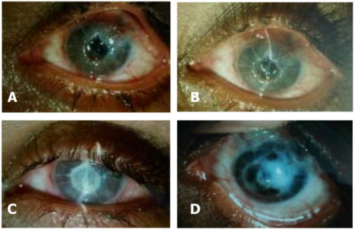 A and B: Left eye showing central corneal melting with perforation inferiorly. C: Cyanoacrylate glue and bandage contact lens applied. D: Healed stage with leucomatous corneal opacity.