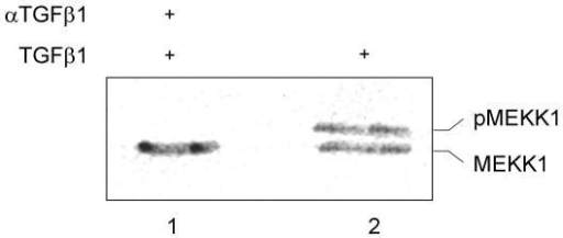 MEKK1 is associated with focal adhesions. BxPC-3 cells were stimulated with 10 nM of mature TGFβ1 for ten minutes followed by preparation of the Triton-X100 nonsoluble fraction and precipitation with αVβ6 integrin antibodies. The precipitate was then re-precipitated with anti-FAK antibodies (sc-1688) and analyzed with a MEKK1 antibody (sc-448). In part, the cells were preincubated with a TGFβ1 antibody [10].