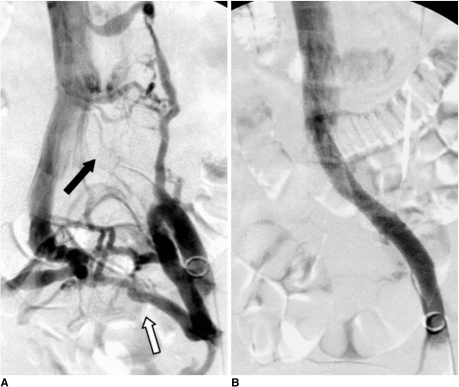 Treatment of iliac vein compression syndrome without deep vein thrombosis.A. Venography showing compressed left common iliac vein (black arrow) and contralateral venous drainage via pelvic venous collaterals (white arrow).B. Venography after stenting showing widely patent left common iliac vein.