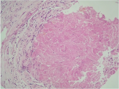 Histological examinationscore (HES) showing granulomatous inflammation with caseous material.