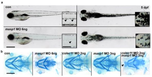 a. General morphology of masp1 zebrafish morphants showing pigmentation defect (arrows; scale bar; main panel = 500 μm; inset = 200 μm) b. Alcian blue cartilage staining at 5 dpf showing cartilage defects in masp1 morphants (6 ng) (panel second from left). Alcian blue staining in morphants double-injected with suboptimal doses of colec11 (2 ng) and masp1 (3ng) MO (panel far right). We observed a cartilage defect only in double-injected morphants compared with single suboptimal injections of either colec11 or masp1 MO (panels third and fourth from left).