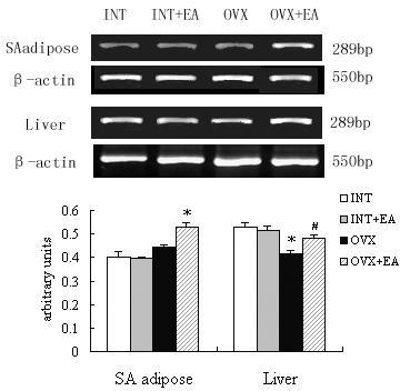 Effects of the electroacupuncture on the aromatase mRNA expressions by RT-PCR analysis. The upper picture shows the gel electrophoresis of the RT-PCR products for the aromatase. Total RNA fractions were isolated from the SA adipose and liver tissues of the INT, INT+EA, OVX and OVX+EA rats, and the cDNAs were prepared using standard techniques, as described in materials and methods. The RT-PCR products for aromatase were fractionated by electrophoresis through 2% agarose gels. Densitometric analysis of the mRNA concentration using aromatase/β-actin expressed as the mean with SEM bar (nINT = 12, nINT + EA = 12, nOVX = 12 and nOVX + EA = 10) in each column indicated in the lower panel. * p < 0.05 vs INT and INT+EA, # p < 0.05 vs OVX.