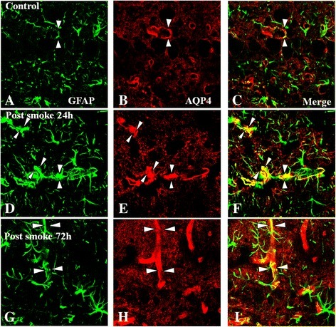 Immunoexpression of AQP4 (red) and GFAP (green) in the olfactory bulb of the C group (A-C) and the SI + S group at 24 and 72 h (D-I). In the normal olfactory tissue, AQP4 expression is localized in the astrocytic foot processes (arrows) and blood vessels (arrowheads) (A-C). In the SI + S group, AQP4 expression is increased at different time points (24 and 72 h, D-I), being more conspicuous at 24 h (E). Intense AQP4 immunoreactivity is localized in GFAP-labeled astrocyte processes and end-feet and blood vessels, which are well delineated (C,F,I). Aminoguanidine administration did not suppress the immunofluorescence at 72 h (image not shown). Scale bar =20.0 μm.