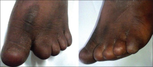 Clinical picture from the front and the sides of the left foot with anonychia, brachydactyly and syndactyly between 2nd and 3rd toe