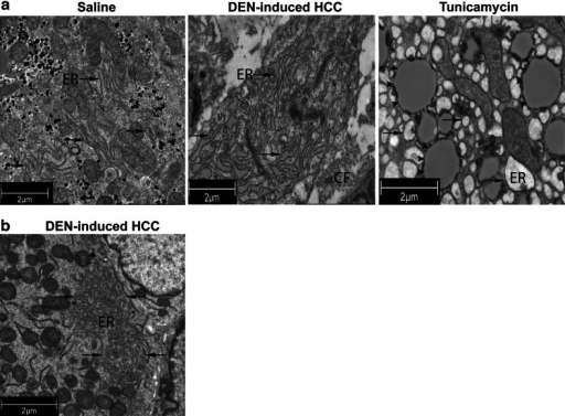 Transmission electron microscopy of saline- and tunicamycin-treated livers and DEN-induced tumors of the mouse model. a Expansion of the endoplasmic reticulum (ER; arrows) in HCC cells (middle panel) compared with saline-treated livers (left panel). Dilated ER in the liver of mice that received tunicamycin for 72 h (right panel). CF, collagen fibers. Tunicamycin-induced lipid droplets are indicated by arrowheads. b Reorganization of the endoplasmic reticulum after 30 weeks of DEN administration. DEN-induced HCC: hepatocellular carcinoma nodules isolated from the diethylnitrosamine-treated mouse liver