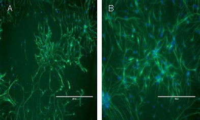 Fluorescence microscopy of nestin immunocytochemistry in cultured neural stem cells (scale bar is 400 μm in A and 200 μm in B).The majority of cells within neurospheres were immunopositive for the neural stem cell-specific cytoskeletal protein nestin (green), whereas only a minority of neurospheres were negative for nestin. The nuclei were also counterstained with 4,6-diamino-2-phenylindole (blue).