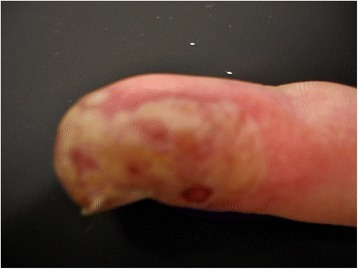 Patient's finger, radial view. Radial side of the patient's little finger, showing yellowish vesicles and erythema.