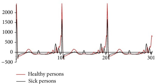 Comparison of mean values of ECG waveforms for healthy/sick persons.