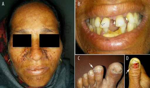 Clinical photographs of the patients showing. (A) adenoma sebaceum, (B) dental pitting (arrowhead) and gingival fibromas (arrows), (C, D) subungual fibromas (arrows).