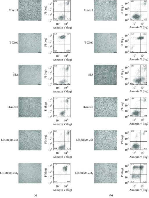 Assessment of necrosis/apoptosis in nontumorigenic cell line Het-1A (a) and the tumorigenic cell line CAL27 (b). Cells were detached and incubated with different peptides indicated for 1 h, after which they were labeled with both Annexin V-FITC and PI, and analyzed by flow cytometry. 10 μM (4.66 μg/mL) STA and 0.2% T-X100 were used as controls. The maximum concentration of the peptides used was 100 μg/mL equivalent to LfcinB25, 32 μM; LfcinB(20–25), 101.5 μM; LfcinB-Pal, 67.3 μM; and LfcinB(20–25)4, 22.25 μM. Photomicrographs were taken with a phase-contrast microscope. Barr = 100 μm.