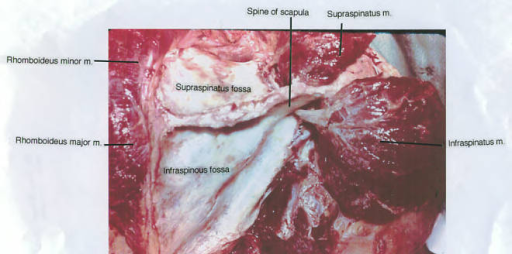 spine of scapula; supraspinatus muscle; infraspinatus muscle; infraspinous fossa; rhomboideus major muscle; rhomboideus minor muscle; supraspinatus fossa