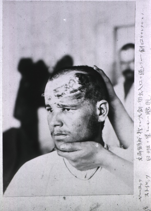 <p>A patient's open wound covers the left side of his forehead.</p>