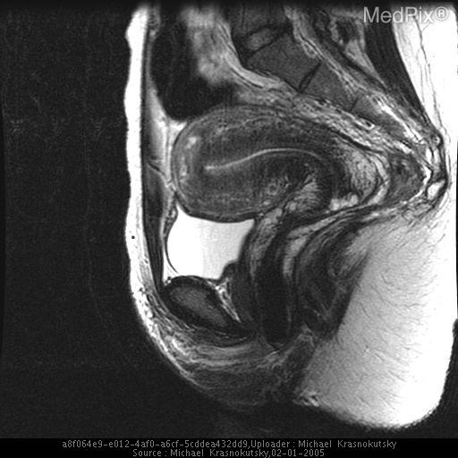 Sagital T2 MRI through the midline of the uterus demonstrate thickened junctional zone and numerous foci of increased signal dispursed through the myometrium.