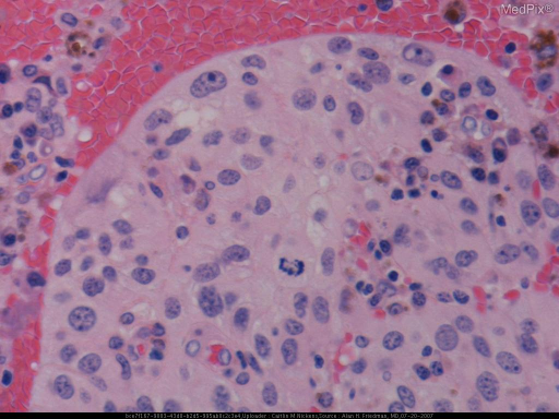 Histology of a patient with malignant melanoma, epithelioid cell type arising in the uveal tract.