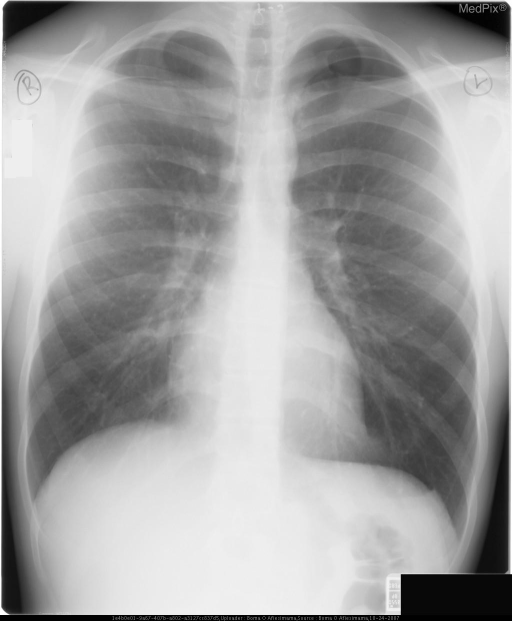 There are no vessels in the periphery of the Left upper chest.  A faint visceral pleural line is seen - the edge of the inflated upper lobe.
