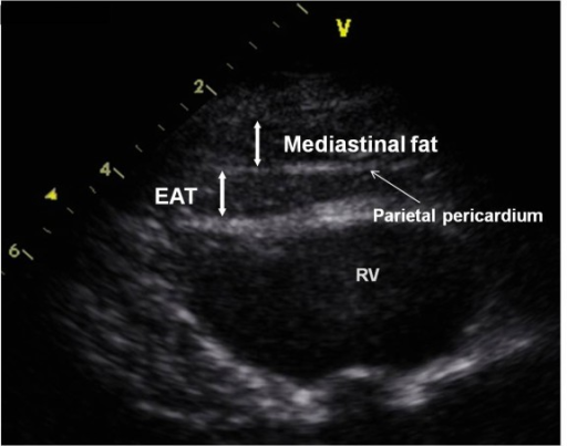 Echocardiographic measurement of epicardial adipose tissue thickness. Parasternal long-axis view at the mitral valve level. EAT, epicardial adipose tissue; RV, right ventricle