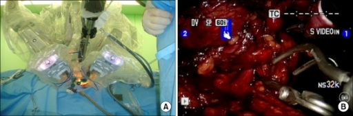 Robotic laparoendoscopic single-site partial nephrectomy. (A) A homemade single-port device was established by inserting two 12 mm trocars and two 8 mm trocars through the fingers of the surgical gloves. The scope was placed at a 30° upward angle to the robotic arms. (B) Renal vessel clamping.