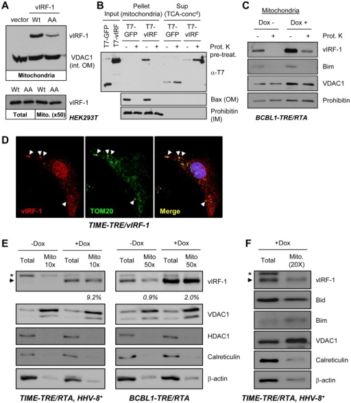vIRF-1 localization to mitochondria.(A) Homogenates of HEK293T cells transfected with wild-type or BBD-mutated (GK179AA) vIRF-1 (or empty vector control, vIRF-1-negative) were subjected to differential and Optiprep gradient centrifugation to isolate enriched mitochondrial fractions (see Materials and Methods). These were analyzed by immunoblotting with vIRF-1-specific rabbit antiserum for the presence of vIRF-1 protein, and also with antibody to mitochondrial protein VDAC1 [voltage-dependent anion-selective channel protein 1; integral mitochondrial outer membrane (int. OM) protein] to provide a positive control. Normalization of vIRF-1 amounts in lysates versus mitochondrial fractions from these transfected cells was achieved using a ratio of 1∶50 (bottom). (B) In vitro mitochondrial binding assays using enriched mitochondria, untreated or pre-treated with proteinase K (Prot. K), and recombinant T7-tagged vIRF-1 for assessment of the requirement for surface protein integrity for mitochondrial binding by vIRF-1. Total protein released from mitochondria was precipitated with trichloroacetic acid (TCA) for direct quantitative comparison with protein from mitochondrial pellets. Blots were probed with antibodies to mitochondrial outer membrane (OM)-associated Bax and inner membrane (IM)-localized prohibitin to provide controls for appropriate fractionation, mitochondrial integrity, and proteinase K activity. (C) Generation and Western analysis of mitochondrial preparations from HHV-8+ BCBL-1-TRE/RTA cells [70] revealed mitochondrial association of endogenous vIRF-1, both in resting (latent) and lytically reactivated (+Dox) cultures; the latter, as expected, expressed higher levels of vIRF-1. In both cases, mitochondrial-associated vIRF-1 was susceptible to protease digestion, consistent with peripheral binding to mitochondria. Immunodetection of Bim verified peripheral protein susceptibility to proteinase K digestion. (D) Mitochondrial localization of vIRF-1 as determined using immunoflourescence assay for detection of vIRF-1 and mitochondrial marker TOM20 in TIME-TRE/vIRF-1 endothelial cells, +Dox. Arrows indicate examples of vIRF-1/TOM20 co-localization. (E) Western analyses of total cell and mitochondrial extracts of HHV-8+ TIME-TRE/RTA and BCBL1-TRE/RTA cells, untreated or treated with Dox for 2 days, were undertaken to quantify the relative amounts of mitochondrial-localized vIRF-1 in these latently and lytically infected cells. For TIME and BCBL-1 cells, 10- and 50-fold excess of mitochondrial extract over total extract, respectively, was loaded onto the gels to achieve near normalization. Relative signal intensities of bands were obtained from digitally captured images and calculated values of mitochondrial relative to total vIRF-1 levels are shown under the vIRF-1 blots. vIRF-1 was detected in latency (−Dox) only in the BCBL-1 (PEL) cells, and mitochondrial∶total vIRF-1 was increased upon Dox addition. Immunoblotting for VDAC1 (mitochondrial), histone deacetylase-1 (HDAC1, nuclear), calreticulin (endoplasmic reticulum) and β-actin (cytoplasmic) provided quality controls for mitochondrial and total cell extracts. (Arrowhead, vIRF-1; *non-specific). (F) A similar experiment in HHV-8+ TIME-TRE/RTA cells, demonstrating mitochondrial localization of Bid, in addition to vIRF-1, in lytically reactivated cultures.
