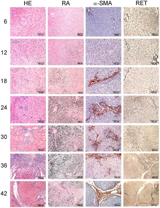 Histological description.COMMD1-deficient dog livers were stained with H&E and RA to assess inflammation and copper accumulation, respectively, and stained for α-SMA and reticulin (collagen type III) to assess fibrosis. Representative pictures of a COMMD1-deficient dog over a period of 42 months are shown. Numbers indicate age in months.